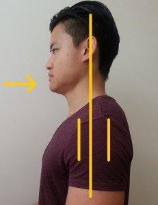 Neck alignment