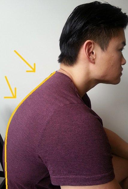 hunchback posture