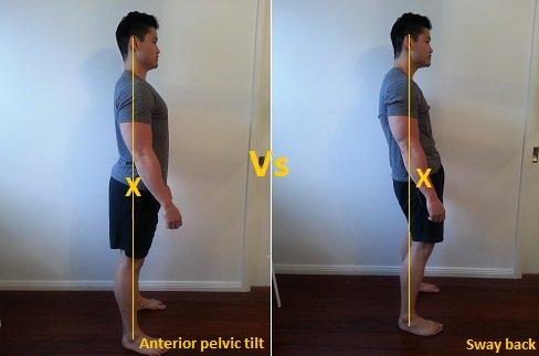 anterior pelvic tilt vs sway back posture
