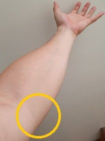 medial elbow tendonitis