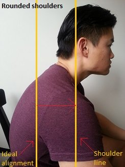 rounded shoulders forward head posture