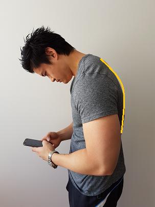 causes of thoracic kyphosis hunchback posture
