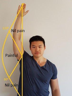 painful-arc