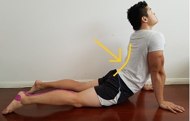 How To Fix Your Hyperlordosis Arched Back Posture Direct