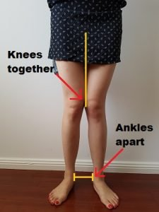 knock knee