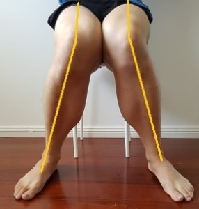bad sitting posture for knee valgus