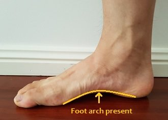 how to fix flat feet posture direct