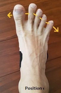 toe control for bunion
