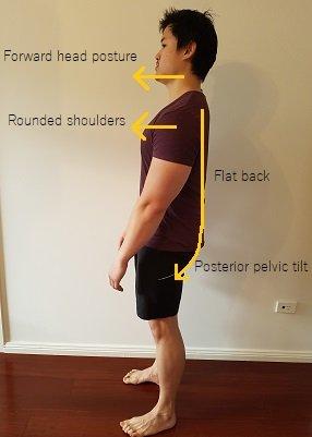 flat back posture