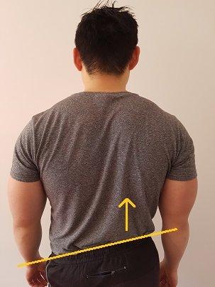 lateral pelvic tilt