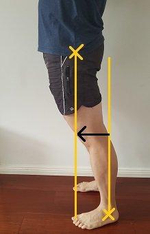 anterior pelvic shift