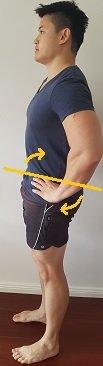 posterior tilt of pelvis in standing