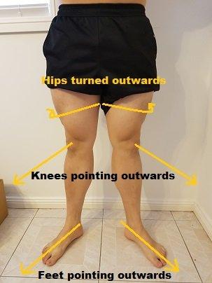 duck feet posture hip external rotation