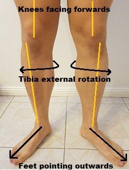 tibial external rotation duck feet posture