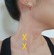 trigger points pain between the shoulder blades
