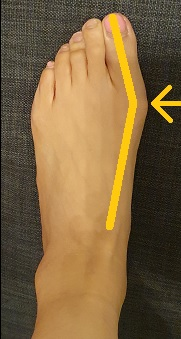 big toe bunion exercises