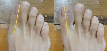 big toe bunion strengthening exercises