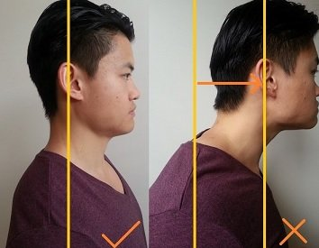 forward head posture dowager's hump