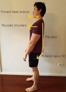 flat back posterior pelvic tilt