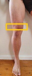 target area distal quadriceps