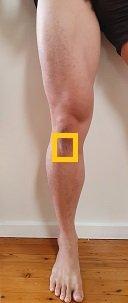 patella tendon area