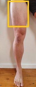 quadriceps release area