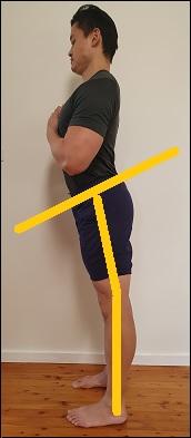 anterior pelvic tilt hyperextended knees